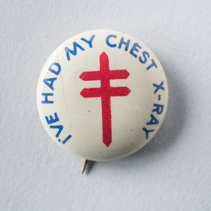 I've had my chest x-ray [pinback button]